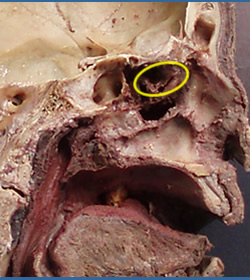 26 The Nasal Cavity And Paranasal Sinuses