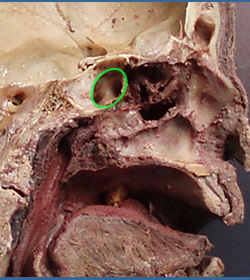 26 The Nasal Cavity And Paranasal Sinuses